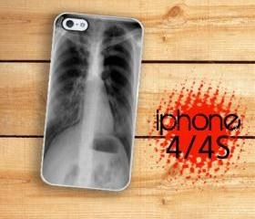 Iphone 4/4S Hard Case Chest XRay