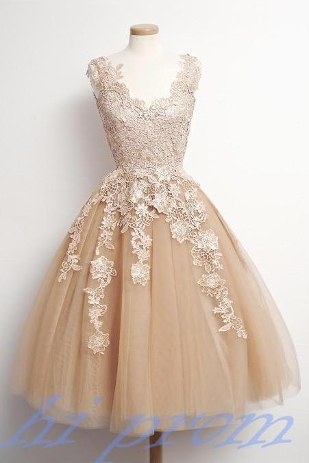 Homecoming Dress,Lace Homecoming Dresses,Knee Length Prom Gown,Champagne Homecoming Gowns,2015 Homecoming Dress,Ball Gown Homecoming Dresses,2015 Sweet 16 Dress For Teens